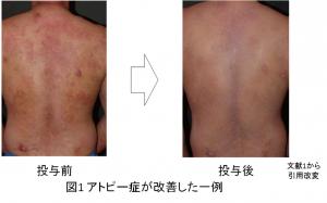 アトピー性皮膚炎改善例